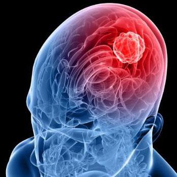 CAR-T抗肿瘤进展