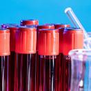 血液制品新规变化