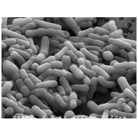 Bifidobacterium animalis (B.lactis)