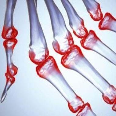 类风湿关节炎患者生物用药的严重不良反应比较