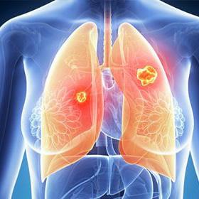PD1/PDL1免疫药物联合EGFR-TKI治疗非小细胞性肺癌的进展