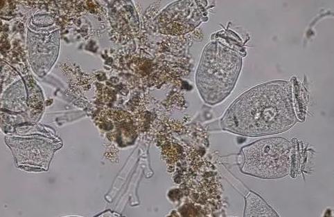 污泥微生物