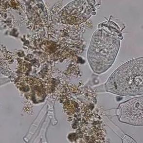 大救星:污泥微生物能产生抗黑色素瘤武器