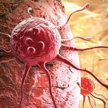 Adaptimmune的TCR-T细胞疗法对实体瘤又产生应答,股价上涨20%!