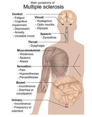 多发性硬化症主要症状