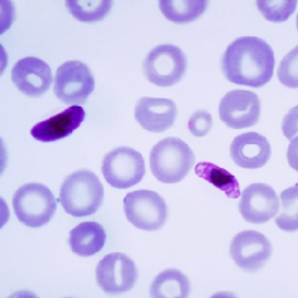 重磅 | PfEMP1-DBLβ——疟疾疫苗的新目标
