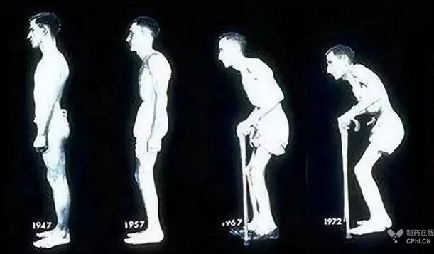 强直性脊柱炎发展历程