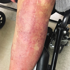 经典病例 | 治疗免疫相关性皮炎,纳洛酮带来新选择