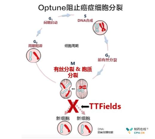 Optune®阻止癌细胞分裂