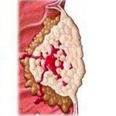 沙利霉素通过作用于β-连环素/T细胞因子复合体表现出抗结肠癌活性