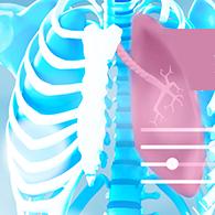 阿斯利康公布POSEIDON研究结果,肺癌一线迎来高效新组合