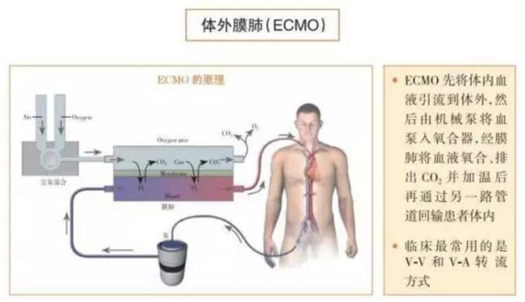 ECMO工作原理图