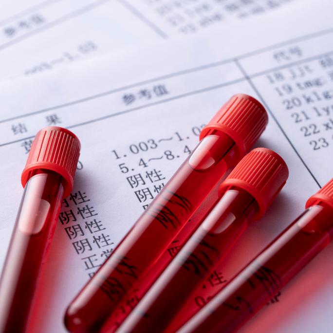 重磅!新冠特免血浆制品疗效初步证实 关注疫情当下的特免产品