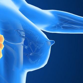 """HER2阳性乳腺癌治疗:""""帕妥珠单抗+曲妥珠单抗+多西他赛""""三药联用效果惊喜"""