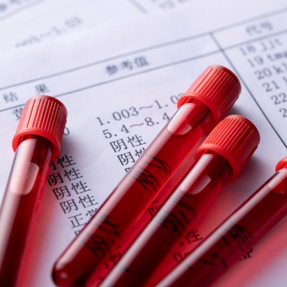 一文读懂2020版GMP附录4《血液制品》重点变化